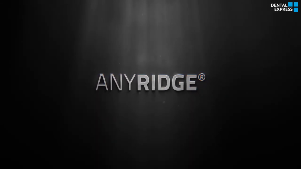 ایمپلنت مگاژن – Anyridge From Megagen
