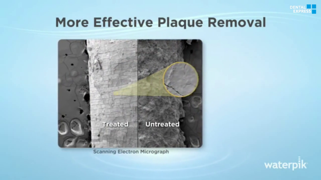 More Effective Plaque Removal – Independent Study