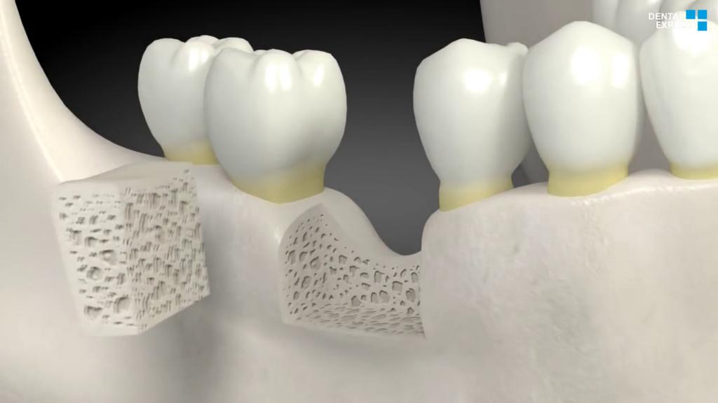 What Is A Dental Bone Graft