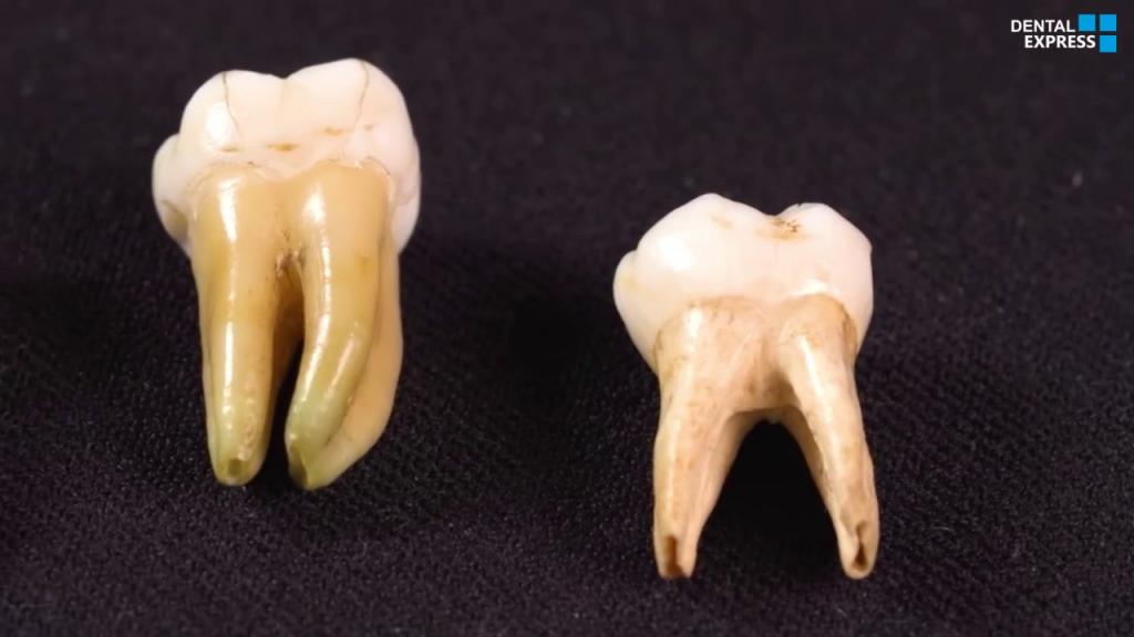 The Wisdom of Teeth