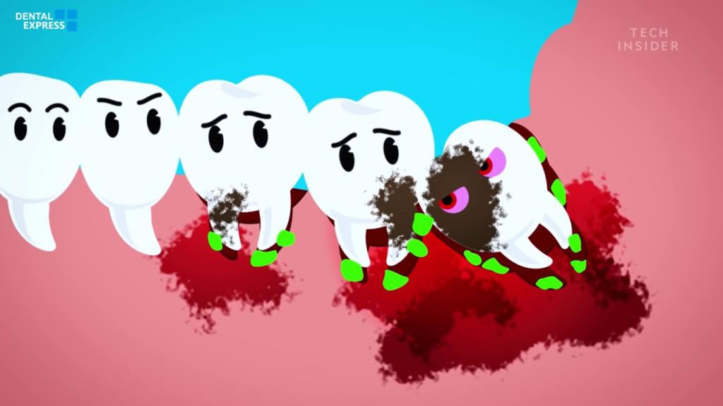 Why Do Wisdom teeth Suck
