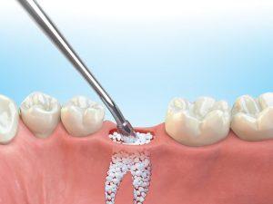 پیوند استخوان دندان
