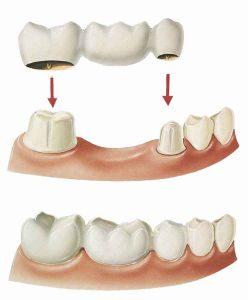 نگهداری ایمپلنت و بریج دندان